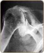 Arthrose Epaule5