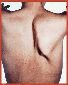 Paralysie Du Trapeze Par Lesion Du Nerf Spinal Xi 05688685