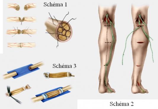 Paralysie Du Trapeze Par Lesion Du Nerf Spinal Xi 11550721