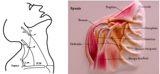 Paralysie Du Trapeze Par Lesion Du Nerf Spinal Xi 18093348