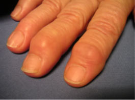 Arthrose Doigt 2