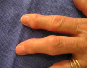 Arthrose Doigt 3