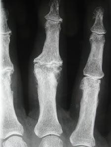 Arthrose Doigt 4