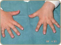 Syndactylie2