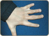 Syndactylie4