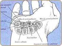 Syndrome Carpien4